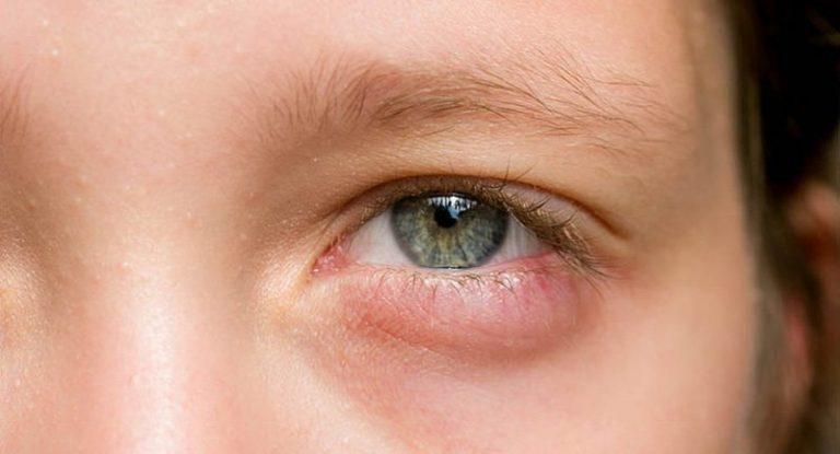 Phẫu thuật bọng mỡ mắt