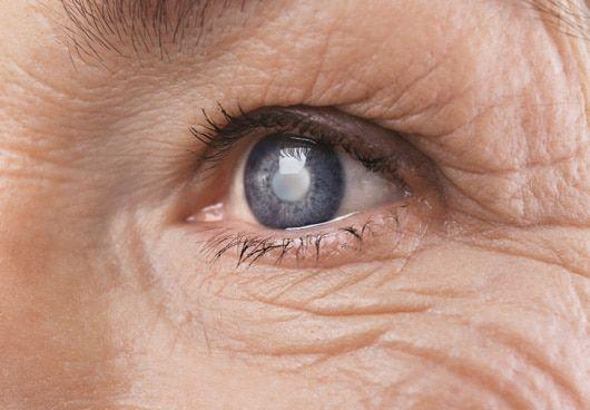 Những biến chứng thường gặp sau mổ đục thủy tinh thể