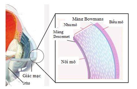 Phẫu thuật ghép giác mạc và những điều cần biết