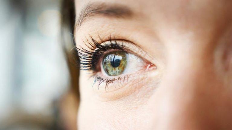 Hở mi mắt: Nguy cơ mắc phải và cách điều trị