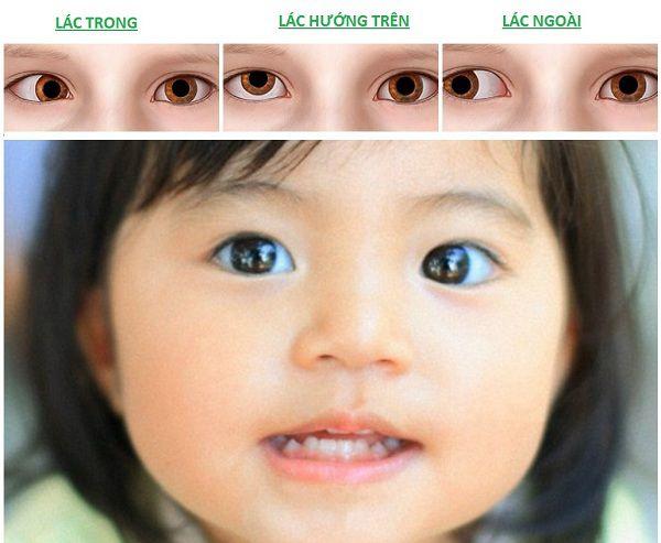 bệnh lé mắt